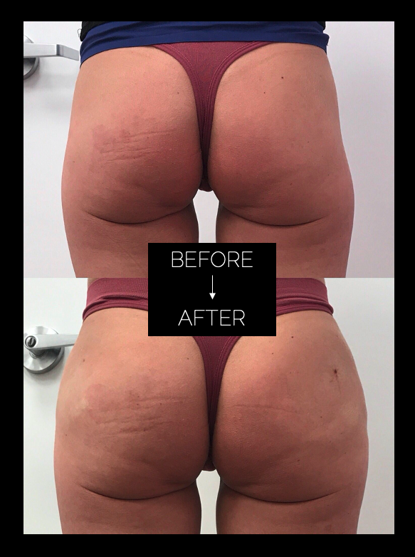 Before and After Sculptra Butt Lift