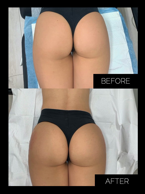 Sculptra Butt Lift Before and After Photo