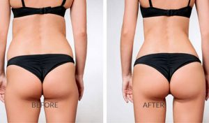before and after sculptra butt lift treatment
