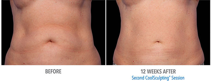 Before and after CoolSculpting fat treatment for stomach.