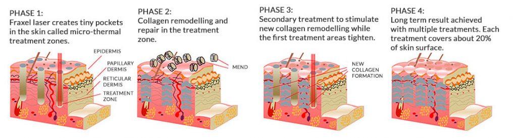 How-Fraxel-Skin-Resurfacing-works