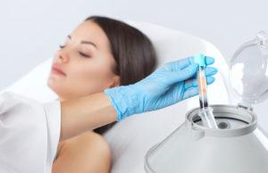 PRP-Hair-Loss-Treatment