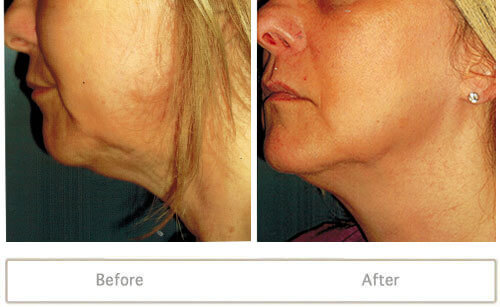 Female patient treated with Venus Legacy skin tightening treatment erase jowls and wrinkles on neck.
